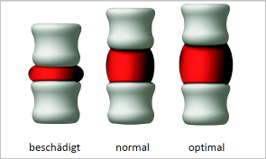 Spinemed OFZ Orthopädie Bandscheiben Rücken